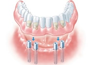 overdenture supported by dental implants