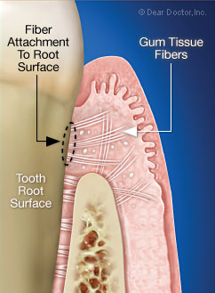 Gum tissue fibers are attached to the tooth root surface